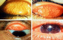 trachoom